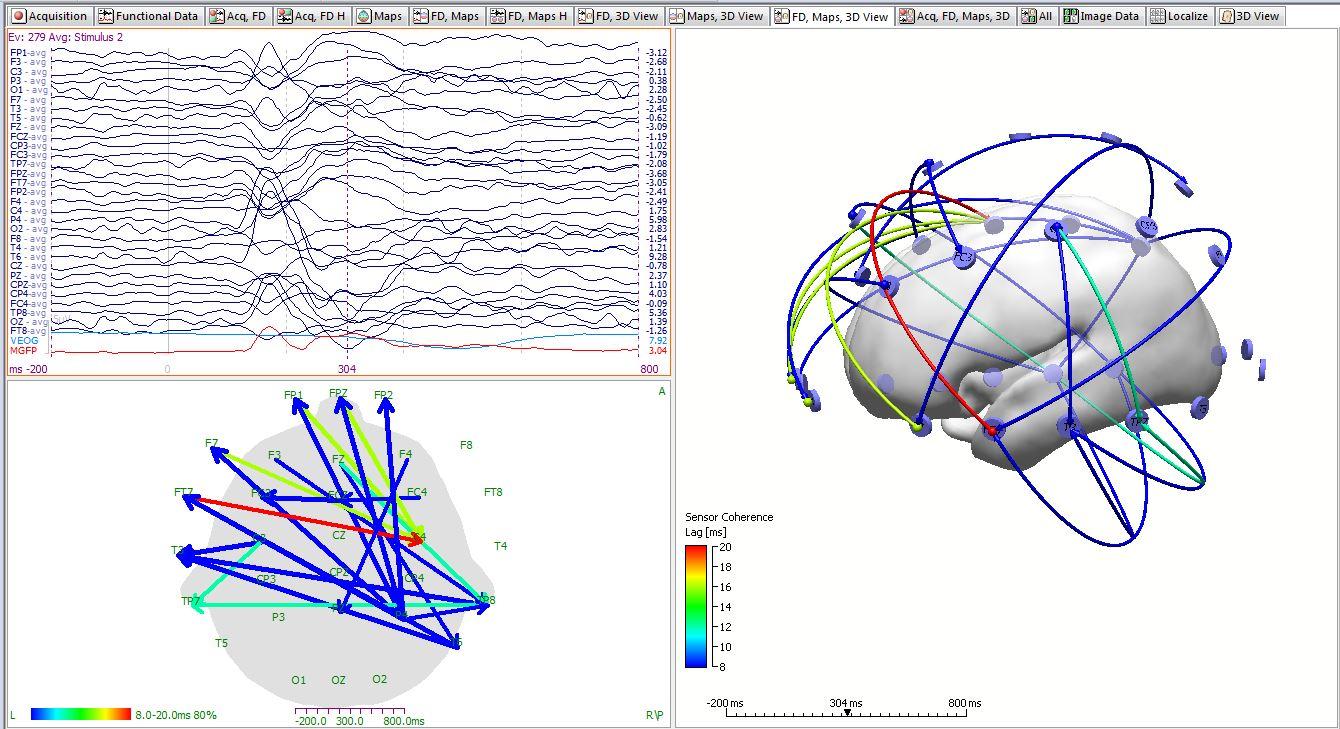 Curry 7 – Signal Processing – Compumedics Neuroscan