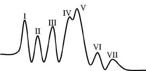 brainstem-auditory-evoked-potential-baep-waveforms