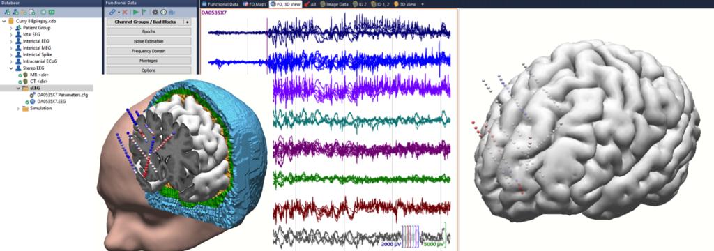 Neuvo 64 channel system – Compumedics Neuroscan