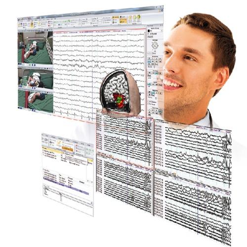 Profusion EEG